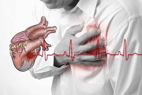 Nam bệnh nhân bất tỉnh vì nhồi máu cơ tim vì xếp hàng khám