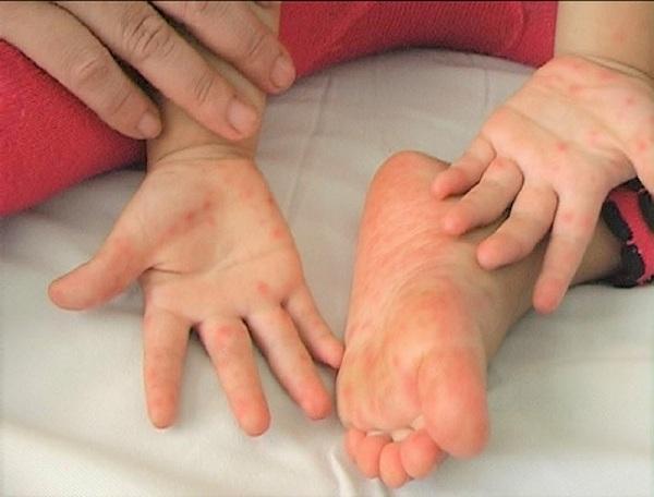 Bác sĩ khuyến cáo cách phòng ngừa bệnh tay chân miệng cho trẻ