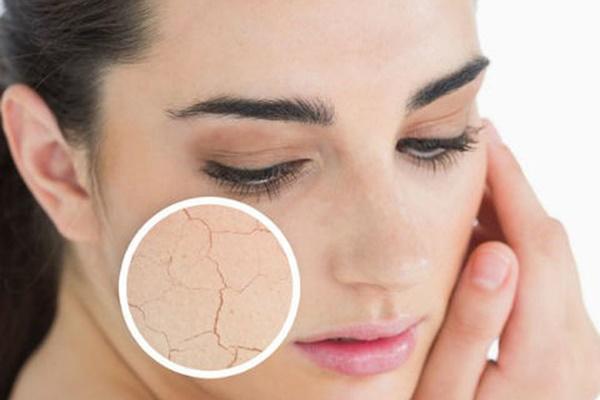 Cách bảo vệ làn da trong những ngày thời tiết hanh khô