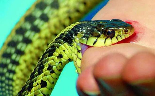 Hướng dẫn sơ cứu đúng phương pháp khi bị rắn cắn