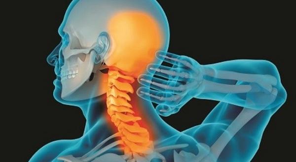 Bệnh thoái hóa đốt sống cổ có thể gây ra những biến chứng gì?