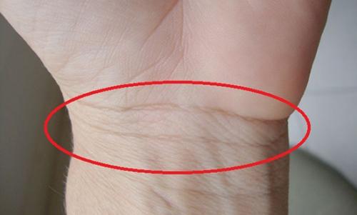 Tiên đoán vận mệnh gái ngành Y sướng hay khổ qua đường vân cổ tay